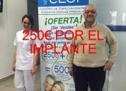 Oferta para ti implante dental