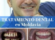 ¡implantes dentales a 275 euro!