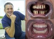 All on 6 - dientes fijos sobre implantes en moldav