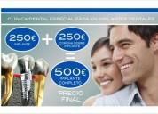 Dentista en cadiz oferta en implantes dentales 250 cadiz