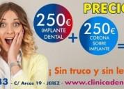 Clinica dental en jerez oferta 250 el implante dental cadiz