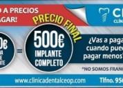 Clinica dental en cadiz implante dental 250 cadiz