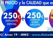 Dentista en jerez 250 el implante dental oferta para ti cadiz